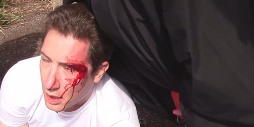 Antifa bashed Ryan Fletcher
